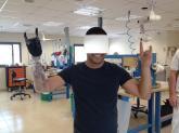 Myoelectric Bebionic 3 bionic hand